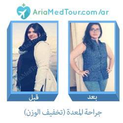 قبل وبعد جراحة المعدة من أجل انقاص الوزن في ايران مع آريا مدتور