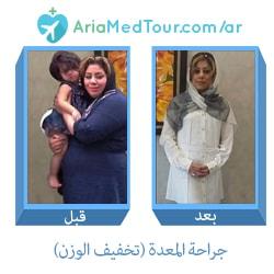 صورة قبل وبعد جراحة المعدة من أجل انقاص الوزن في ايران مع آريا مدتور
