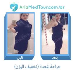 أفضل نتائج قبل وبعد جراحة المعدة من أجل انقاص الوزن في ايران مع آريا مدتور