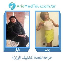 قبل وبعد جراحة المعدة من أجل انقاص الوزن