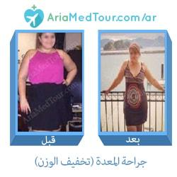 صورة قبل وبعد جراحة المعدة من أجل انقاص الوزن في ايران