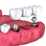 طب الأسنان في ايران - علاج الأسنان