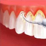 علاج الأسنان في ايران - طب الاسنان