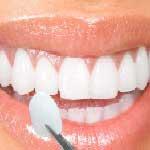 طب الأسنان في ايران - تجميل الأسنان في ايران