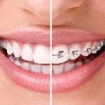 علاج الاسنان في ايران - مدة تقويم الاسنان