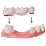 علاج الاسنان في ايران - تجميل الاسنان في ايران