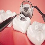 علاج الأسنان في ايران - تجميل الأسنان