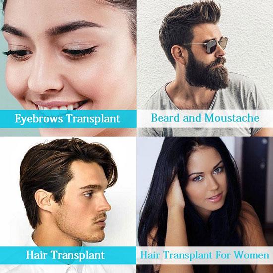 زراعة الشعر - أفضل مركز لزراعة الشعر