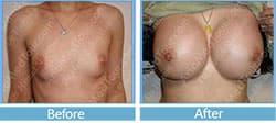 تكبير الصدر - تصغير الصدر - صور قبل وبعد تجميل الصدر - شد الصدر