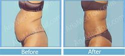 شفط الدهون نحت الجسم صور قبل وبعد عملية شفط الدهون