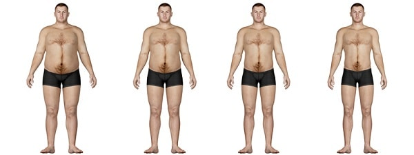 تکمیم المعده یساعد الناس على فقدان الوزن الزائد على مدى سنتین