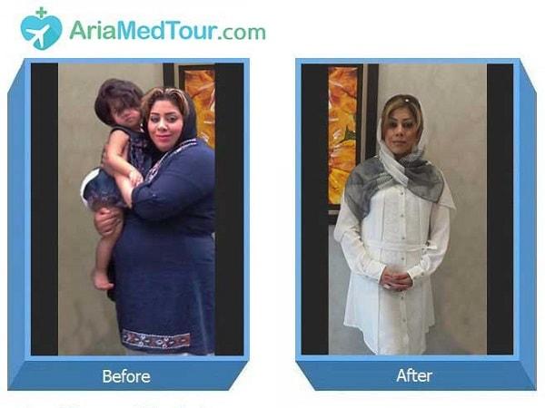 صور قبل وبعد جراحة تكميم المعدة في ايران