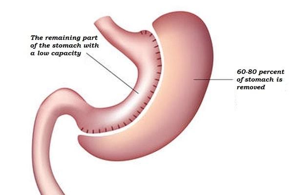 من خلال عملية تكميم المعدة ، تتم إزالة حوالي 60 إلى 80 في المائة من المعدة لتقليل قدرتها ، وبالتالي تقليل الشهية وفقدان الوزن.