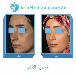 قبل وبعد تجميل الانف في ايران لدى افضل الجراحين المتخصصين مع آريا مدتور