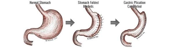 عملية طي المعدة أو ثني المعدة