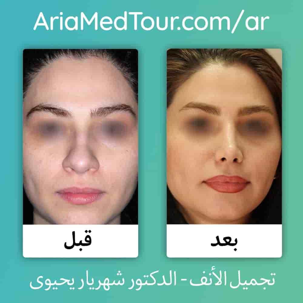 صورة قبل وبعد تجميل الانف العريض لدى الدكتور يحيوي في ايران مع آريا مدتور