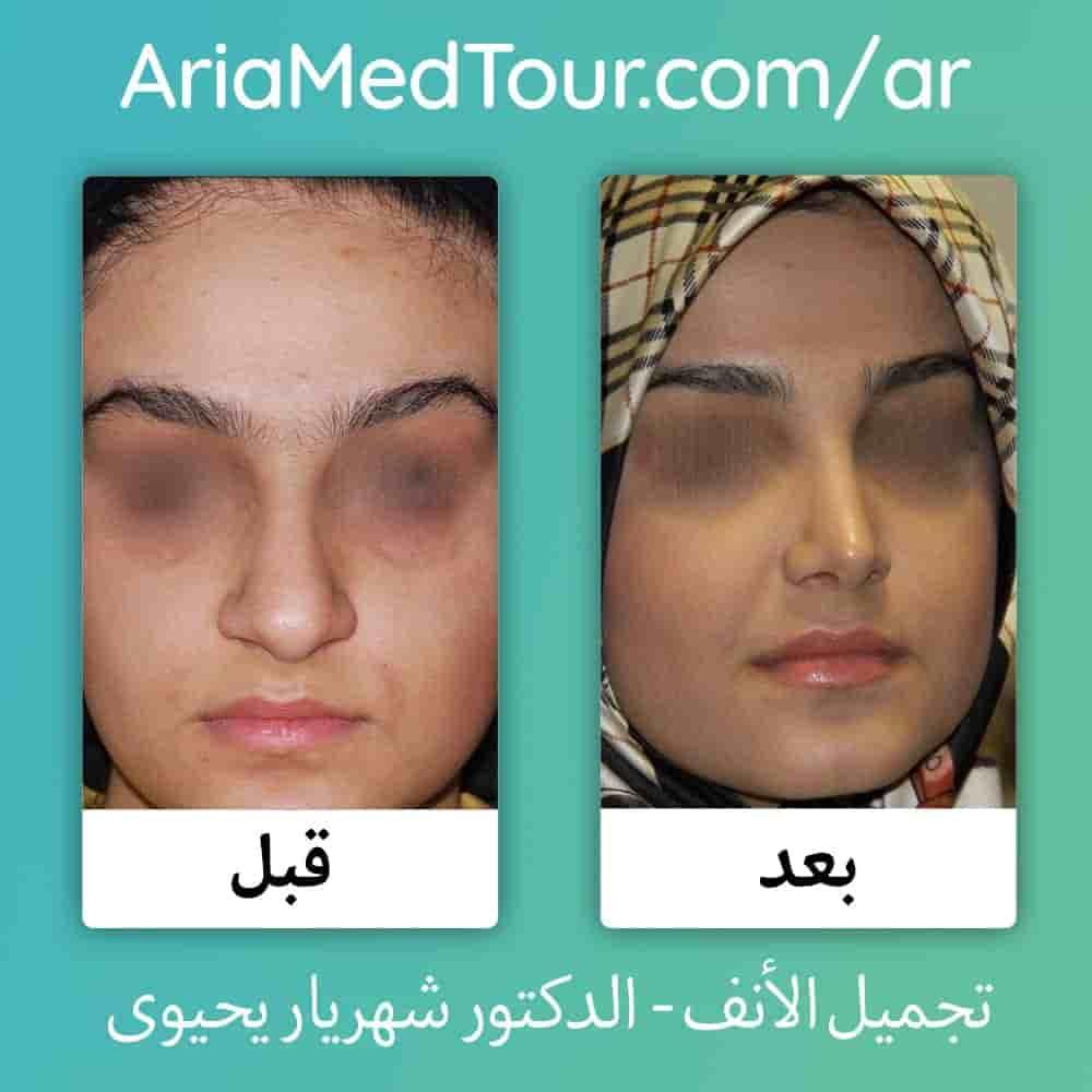 صورة قبل وبعد تجميل الانف اللحمي لدى الدكتور يحيوي في ايران مع آريا مدتور