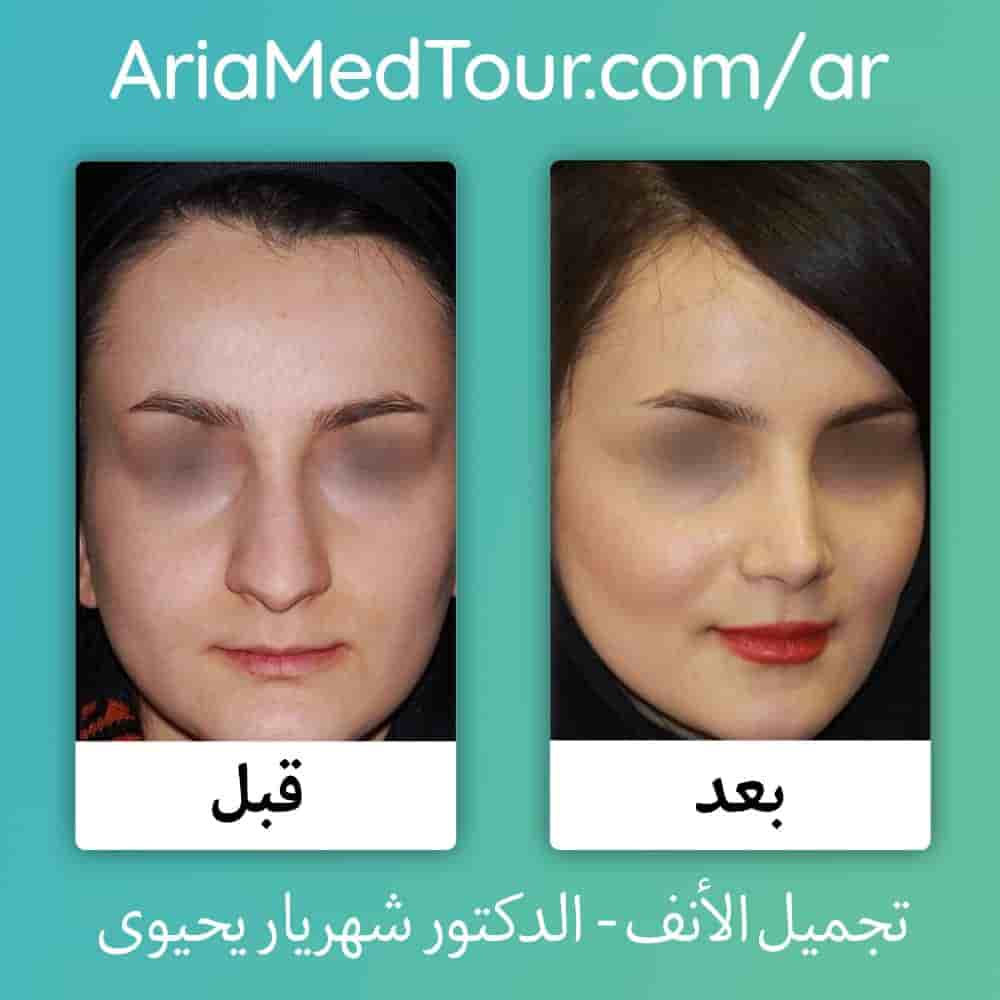 قبل و بعد تجميل الانف في ايران لدى الدكتور شهريار يحيوي | آريا مدتور