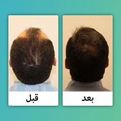 صور قبل وبعد زراعة الشعر في ايران