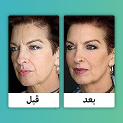 صور قبل وبعد التجميل بالبوتكس