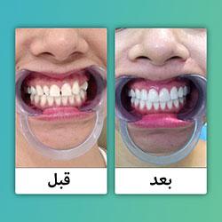 صور قبل وبعد تجميل وعلاج الاسنان