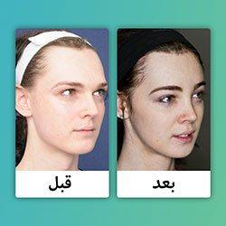صور قبل وبعد إصلاح خط شعر الجبين
