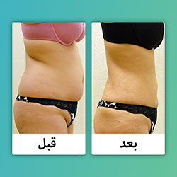 صور قبل وبعد شفط الدهون