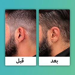 صور قبل وبعد تجميل الأذنين