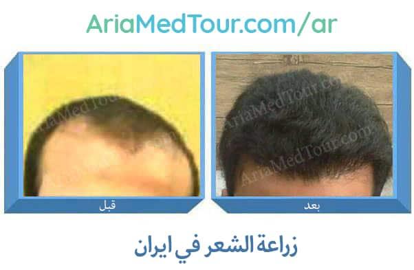 زراعة الشعر في ايران