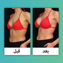 صور قبل وبعد تجميل الصدر