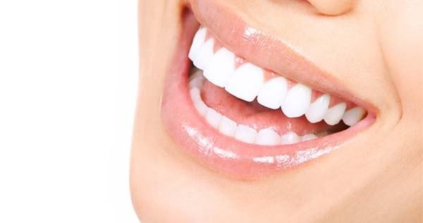 فينير الاسنان في ايران للحصول على ابتسامة هوليود