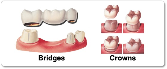 ما هي جسور و تيجان الاسنان ؟