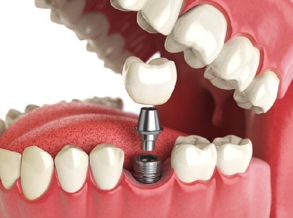 طريقة زراعة الاسنان