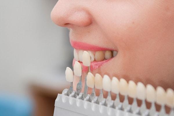 فينير الاسنان في ايران وفق اللون المناسب لاسنانك