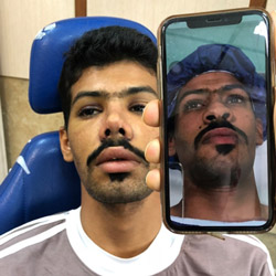 تجربة هشام من عمان مع تجميل الأنف في ايران | آريا مدتور