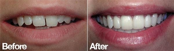 قبل وبعد تجميل الاسنان باستخدام الفينير في ايران