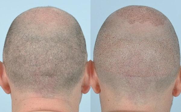 طريقة الاقتطاف في زراعة الشعر