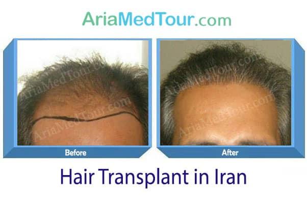 زراعة الشعر طريقة الشريحة