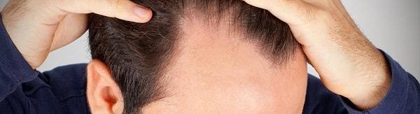 زراعة الشعر بطريقة الاقتطاف