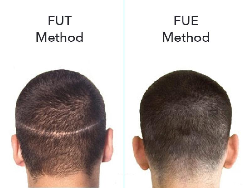 زراعة الشعر FIT و FUE