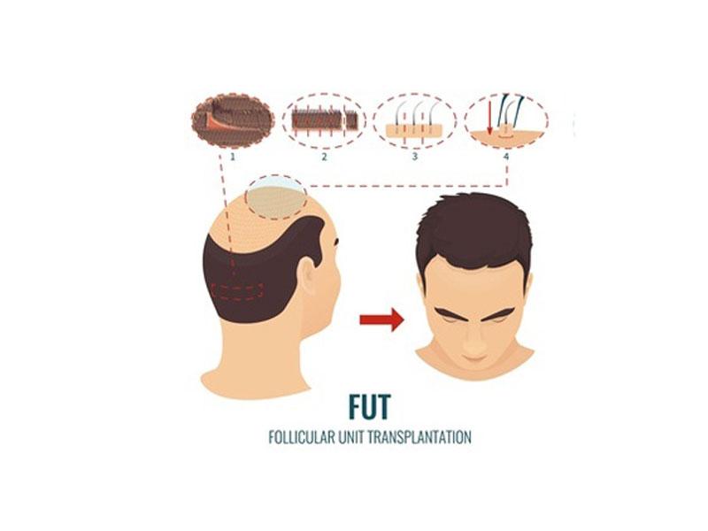 زراعة الشعر باستخدام طريقة الشريحة FUT