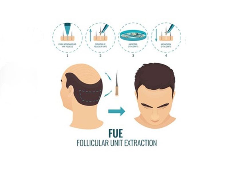 زراعة الشعر باستخدام طريقة الاقتطاف FUE