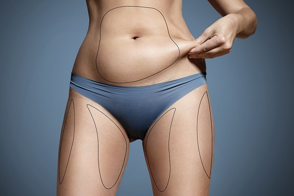 تحلیل الدهون باللیزر
