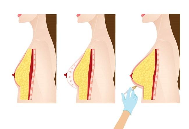 نقل الدهون للثدي