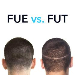طريقة الشريحة FUT مقابل طريقة الاقتطاف FUE في زراعة الشعر