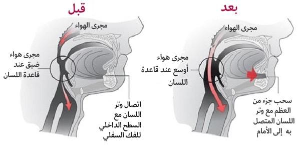 انقطاع النفس النومي - تقديم العضلة الذقنية اللسانية