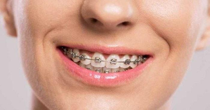 تقويم الأسنان في إيران