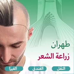 عرض زراعة الشعر في ايران