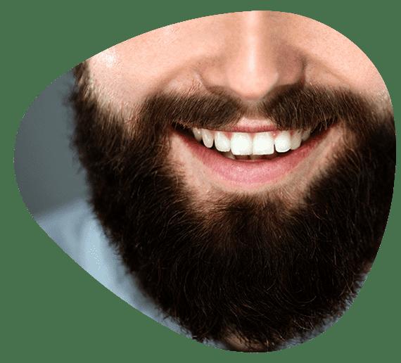 زراعة شعر الوجه في ايران (زراعة اللحية)