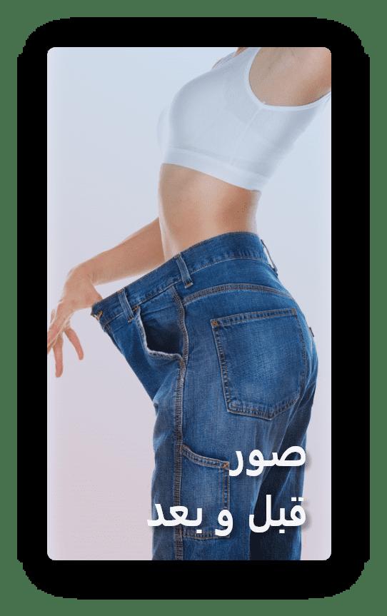 صور قبل و بعد انقاص الوزن و التخلص من البدانة و السمنة في ايران | آريا مدتور